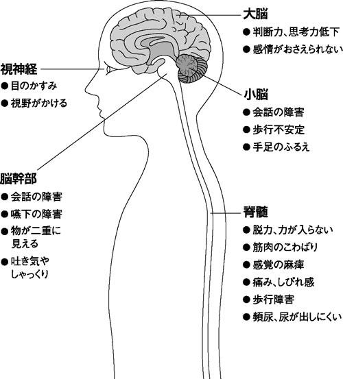 症状 脳 ヘルニア