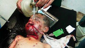 イラク政府軍の「対テロ」と称した空爆で傷ついた子ども(2014年5月、ファルージャ総合病院スタッフ提供)