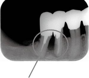 写真2 骨吸収像 顎の骨が溶けている状態
