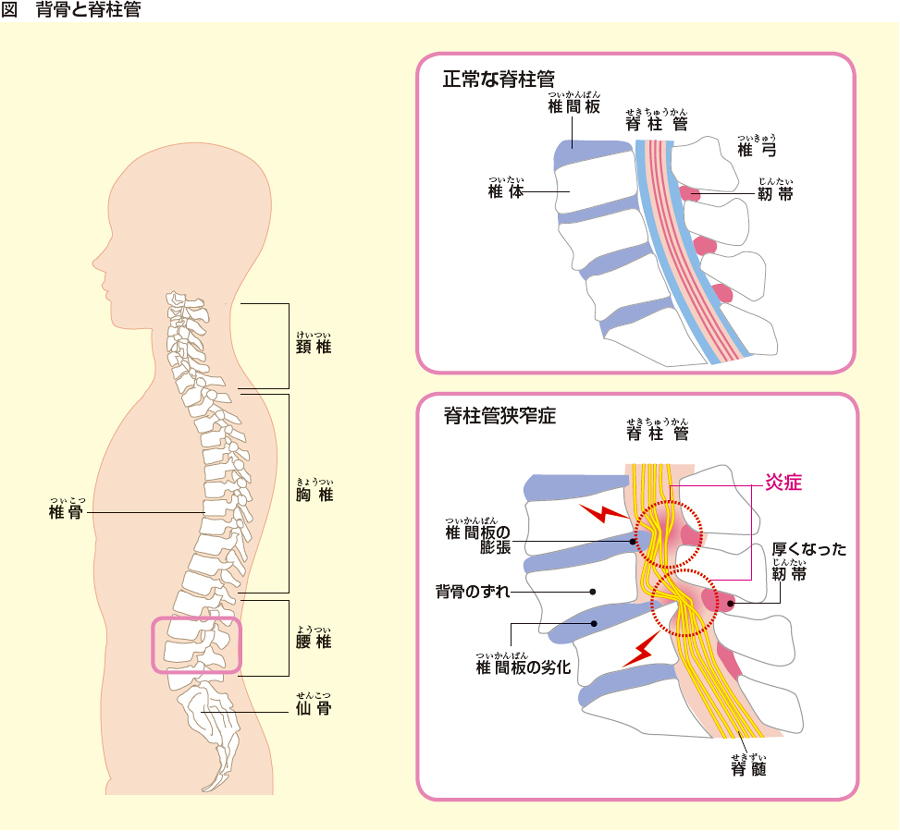 狭窄 症 管 脊柱
