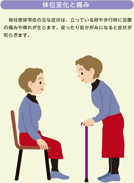 管 狭窄 症 は 脊柱 と